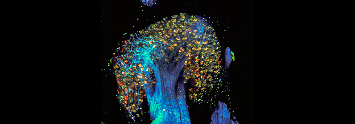 """Tree of Pain"" – Image of Dorsal Root Ganglion labelled by PainBow"